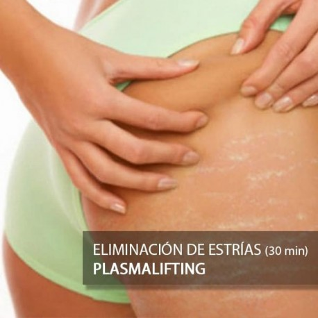 Plasmalifting Eliminación de Estrías - 30 minutos
